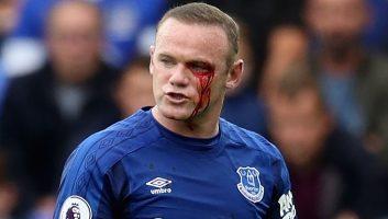Everton  2 - 1  AFC Bournemouth