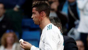 VIDEO Real Madrid 7 - 1 Deportivo La Coruna
