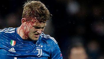 Lyon  1 - 0  Juventus